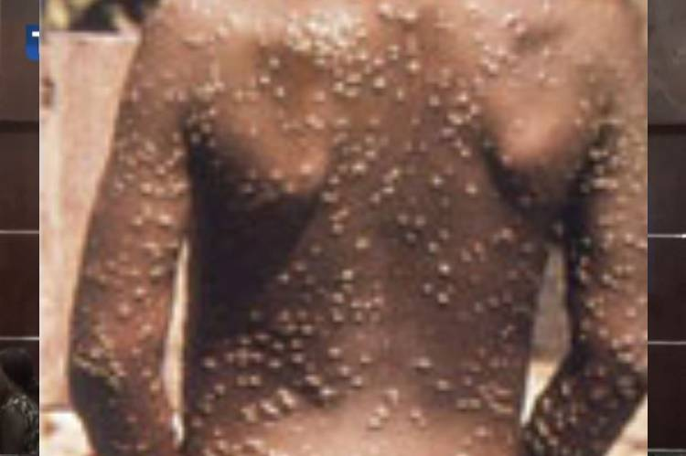 current news about monkeypox in United states