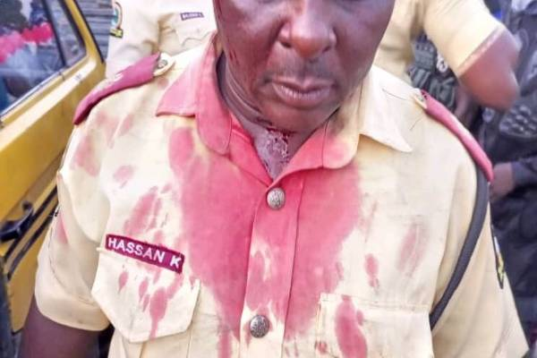 Latest Breaking News About LASTMA: Unidentified driver on the run for stabbing LASTMA official
